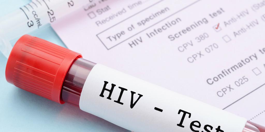 - SIDA 1 - 135 mil pessoas no Brasil convivem com o vírus HIV e não sabem