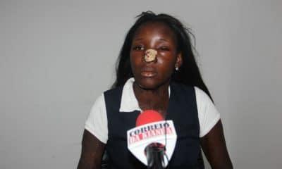 cidadã agredida pela ex-cunhada acusa a polícia de lhe ter negado proteção - cidad agredida 400x240 - Cidadã agredida pela ex-cunhada acusa a polícia de lhe ter negado proteção