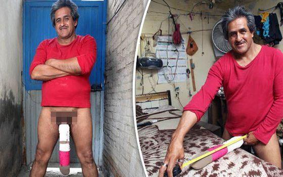 - Roberto Esquivel Cabrera 560x350 - Homem com maior pénis do mundo foi considerado inapto para trabalhar