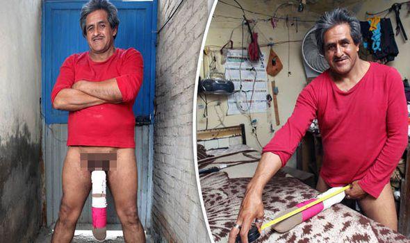 homem com maior pénis do mundo foi considerado inapto para trabalhar - Roberto Esquivel Cabrera - Homem com maior pénis do mundo foi considerado inapto para trabalhar